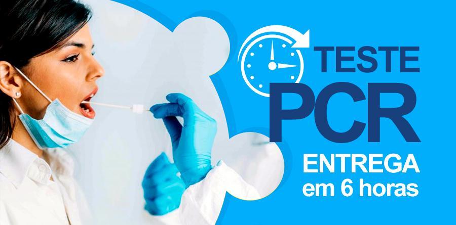 Teste PCR no bairro do Brás a preços populares